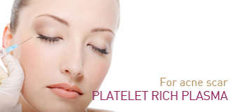 PRP for acne scar