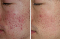 before-after acne1
